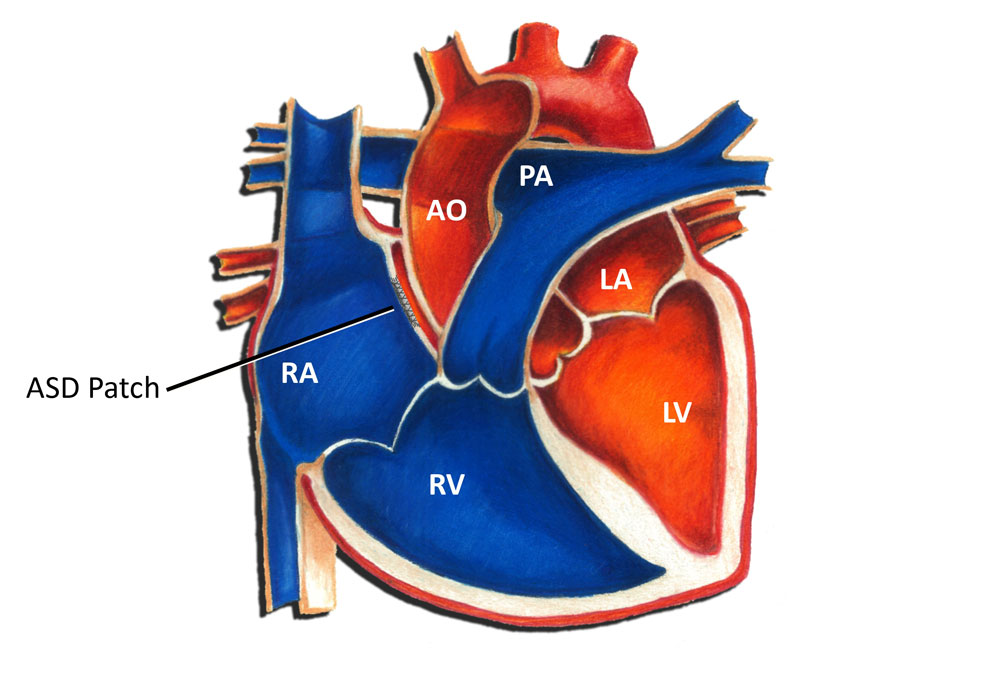 Atrial Septal Defect Surgical Repair Pediatric Heart Specialists