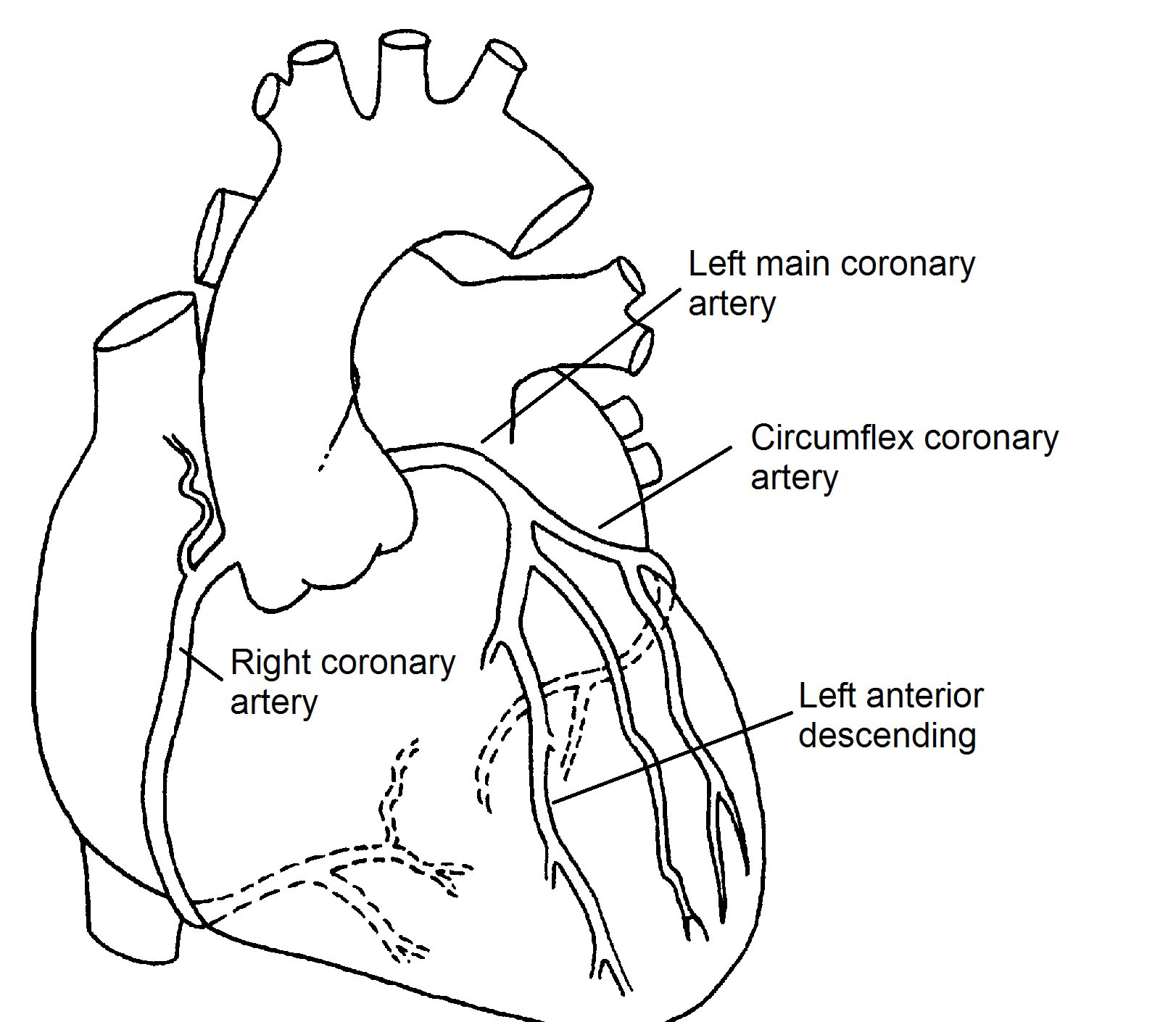 Normal Coronary Arteries - Pediatric Heart Specialists
