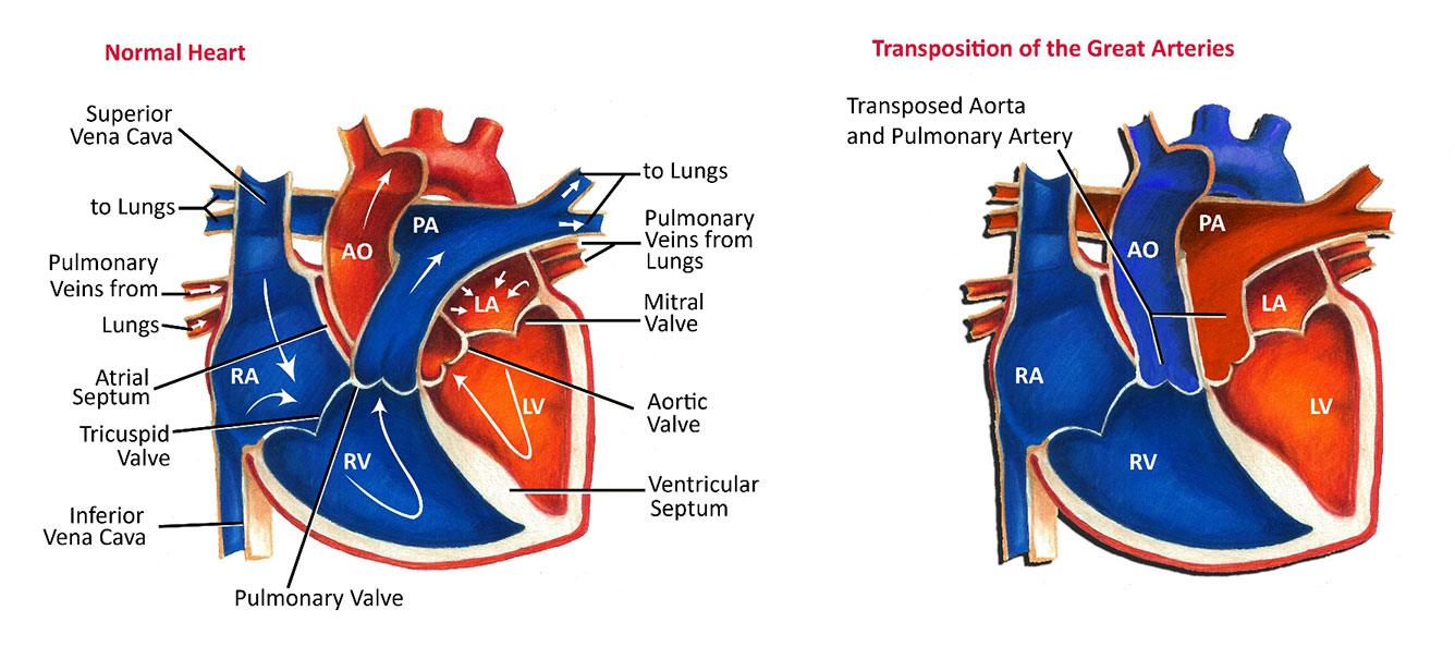 Transposition Of The Great Arteries Pediatric Heart Specialists