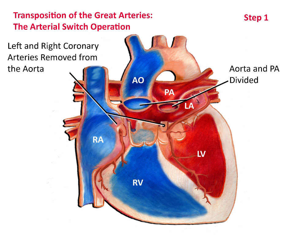 Transposition of the Great Arteries - Surgical Repair - Pediatric ...